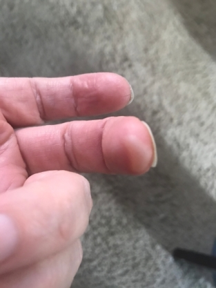 burnt finger